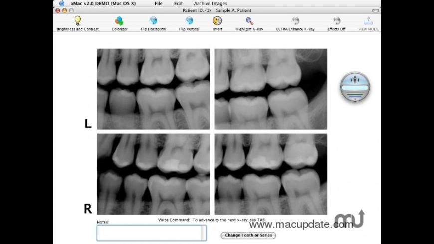 aMac Digital Radiography for Mac - review, screenshots